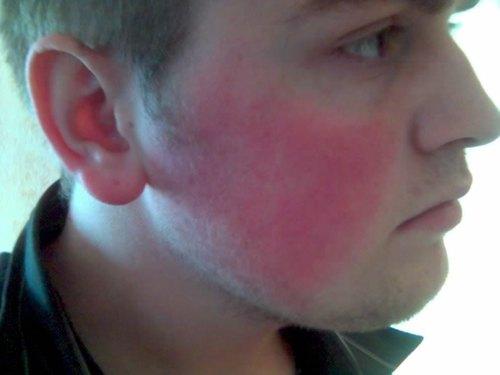 fractional skin treatment