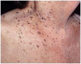 Seborrhoeic Keratosis Treatment