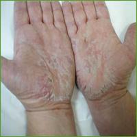 Medicine for Skin Disease