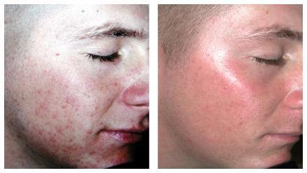 Laser for Acne