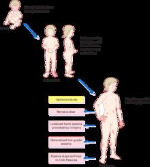 Eczema Atopic Dermatitis Treatment