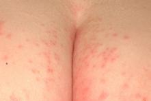 Fungal Rash on Buttocks