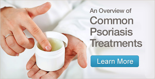 Vulgaris Psoriasis Treatment Cream