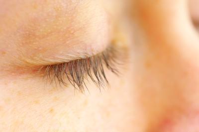 Scaly Skin on Eyelids