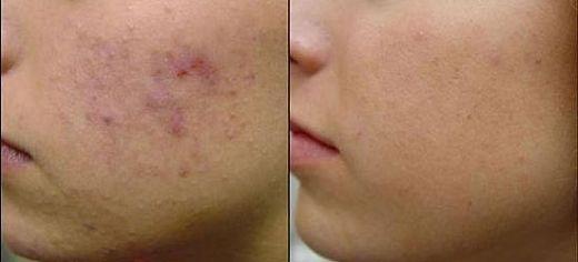 Eczema Scar Removal