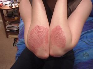 Skin Psoriasis Contagious