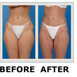 Skin Laser Treatment for Eczema