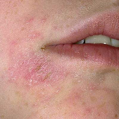eczema articles