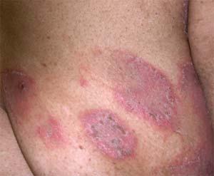 Skin Conditions Eczema