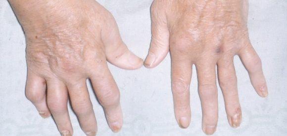 Pain Treatment for Psoriatic Arthritis