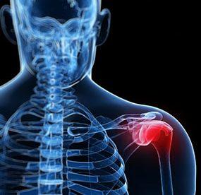 Psoriatic Arthritis Fatigue