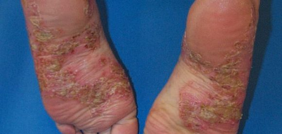 Pustular Psoriasis of the Feet