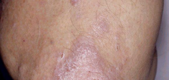 Dry Skin Psoriasis Treatment