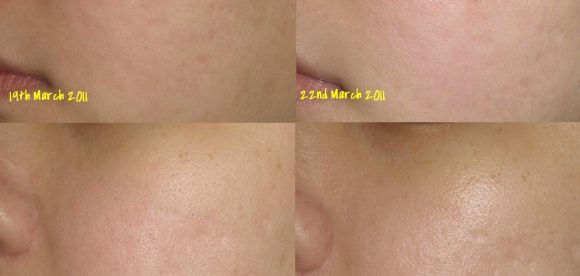 Reduce Redness on Nose