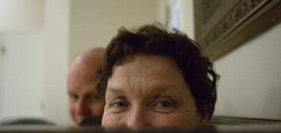 Under Eye Smile Wrinkles
