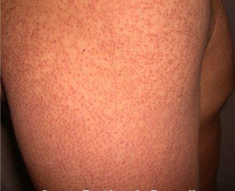 KP Dermatology