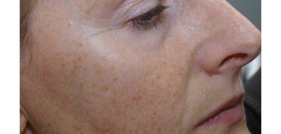 Blotchy Skin on Cheeks