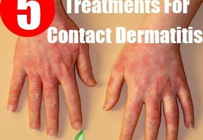 Best Cream for Contact Dermatitis