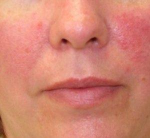 Red Irritated Facial Skin