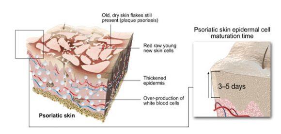 Psoriasis of Skin