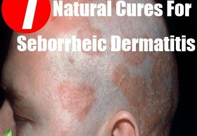 Home Remedy for Seborrheic Dermatitis