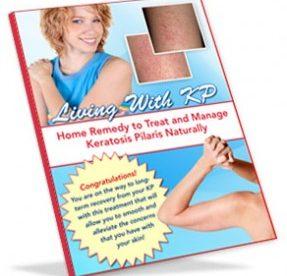Keratosis Pilaris Home Remedy Solutions