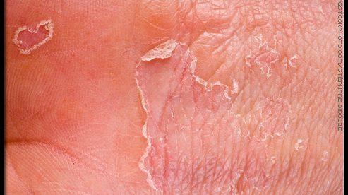 Eczema Skin Disease