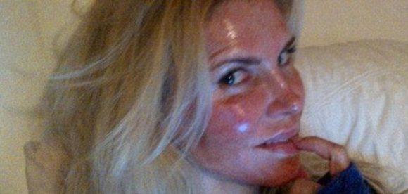 Raw Skin Treatment