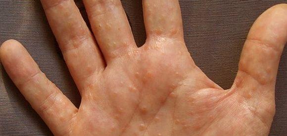 How to Cure Dyshidrotic Eczema