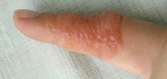 Dyshidrotic Eczema Fingers