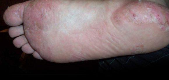 Dyshidrotic Eczema