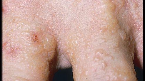 Eczema Bumps on Legs