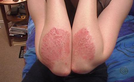 Prevent Eczema & Psoriasis