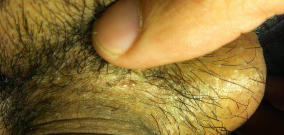 Hair Follicle Diseases