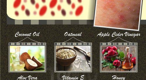 Eczema Home Remedies Honey