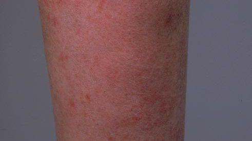 Eczema Lower Legs