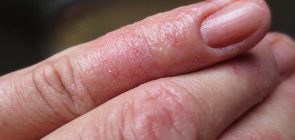 Eczema on One Finger