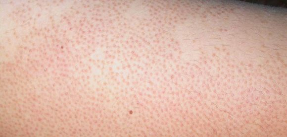 Dry Skin Keratosis Pilaris