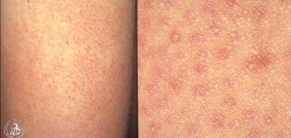 Bumpy White Spots on Skin