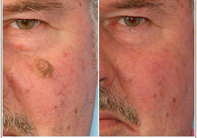 Seborrheic Keratosis Laser Removal