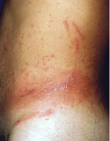 Dermatology Skin Rashes Pictures