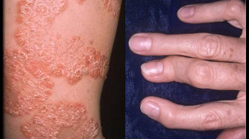 The Psoriasis and Psoriatic Arthritis