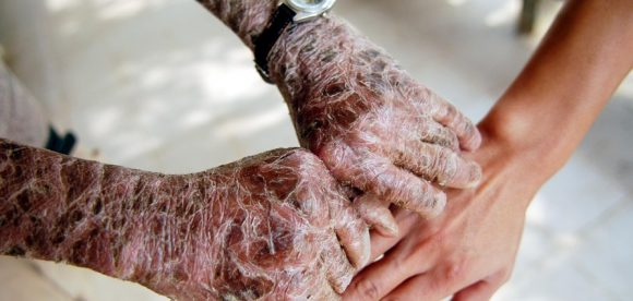 Scaly Skin Disorders
