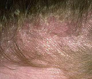 Scalp Dermatitis Pictures