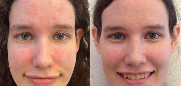 How to Treat Seborrheic Dermatitis