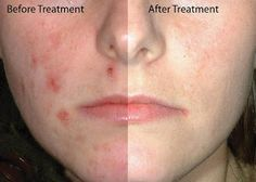 Adult Acne Natural Treatment