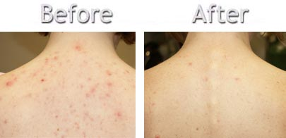 What Helps Back Acne