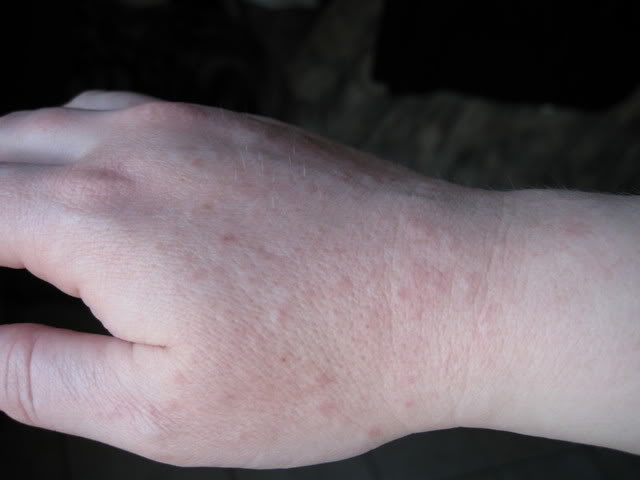 Lucky bastard! latex glove hand rash cure