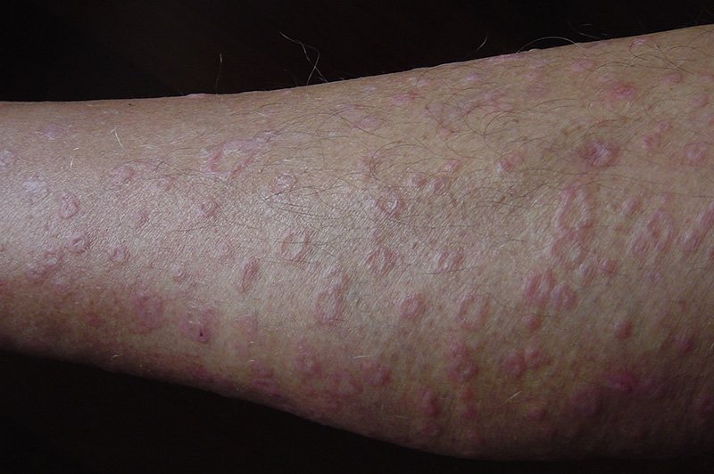 Red Rashes On Arms Legs And Face - Transexual You Porn