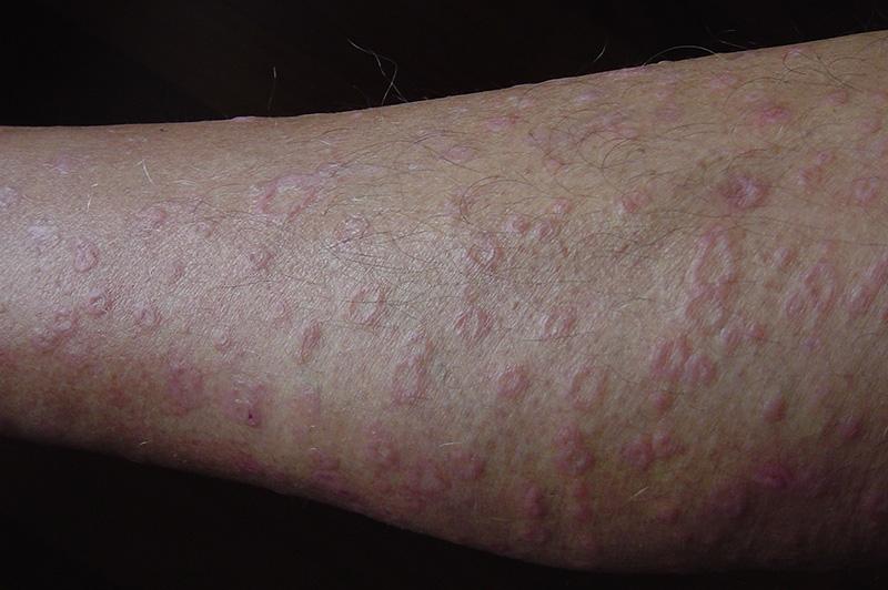 Udslæt på ben Dorothee Padraig Sydvest Skin Health Care-2769